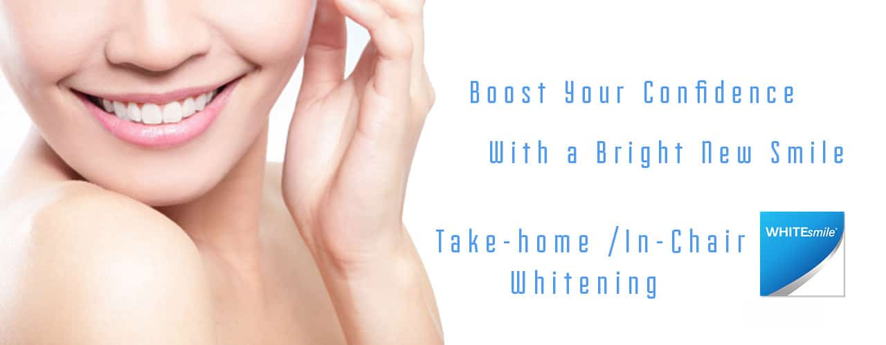 teeth-whitening-whitesmile