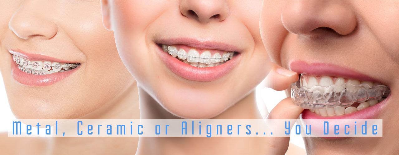 meta-ceramic-braces-aligners
