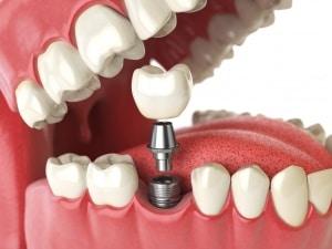 medisave-dental-implants