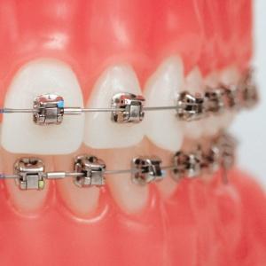braces-damon